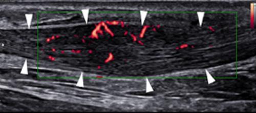 Echographie foetale