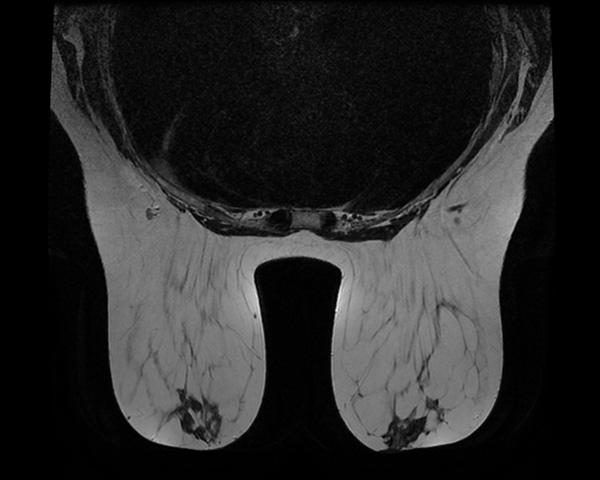 IRM - Imagerie Jacquemars Gielée
