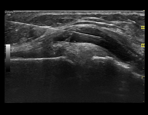 Infiltration imagerie jacquemars giel e - Cabinet radiologie seclin ...