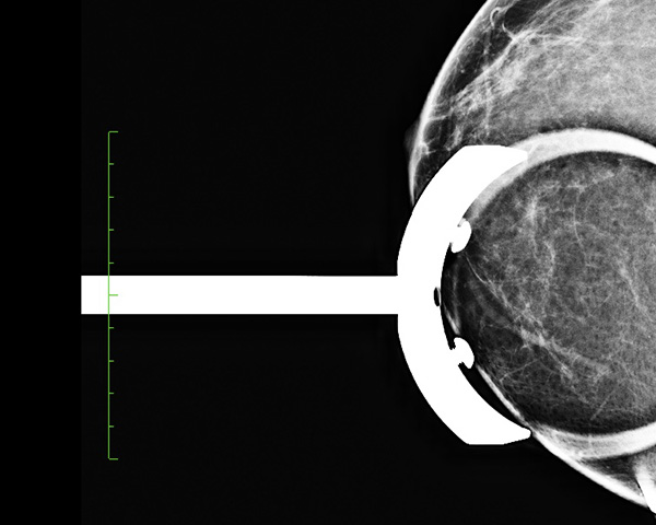 Mammographie imagerie jacquemars giel e - Cabinet radiologie seclin ...